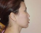 Neck Lift after 1029985