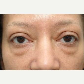 57 year old woman treated with Eyelid Surgery before 2269896