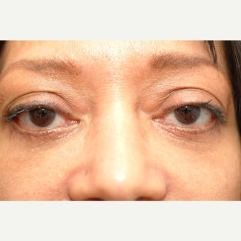 57 year old woman treated with Eyelid Surgery after 2269896