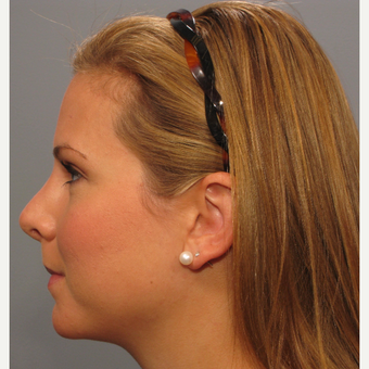 25-34 year old woman treated with Rhinoplasty after 3410840