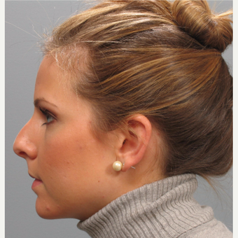 25-34 year old woman treated with Rhinoplasty before 3410840