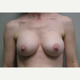 Breast Augmentation after 3680741