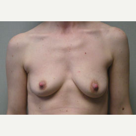 Breast Augmentation before 3680741