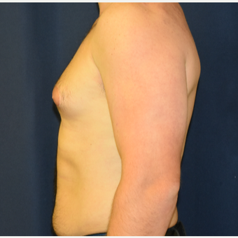 25-34 year old man treated with Male Breast Reduction before 3787092
