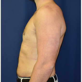 25-34 year old man treated with Male Breast Reduction after 3787092
