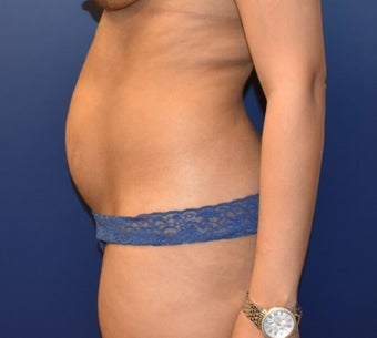 35-44 year old woman treated with Tummy Tuck before 3466762