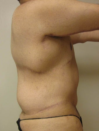 28 year old male who underwent extended abdominoplasty (tummy tuck) 1422632