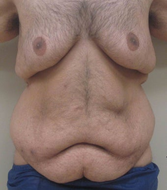 28 year old male who underwent extended abdominoplasty (tummy tuck) before 1422632