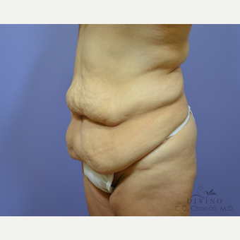 35-44 year old woman treated with Tummy Tuck before 3415588