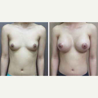 25-34 year old woman treated with Breast Augmentation before 3452640