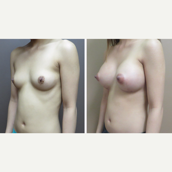 25-34 year old woman treated with Breast Augmentation after 3452640