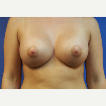 21-year-old woman treated with Saline Breast Augmentation after 3325878