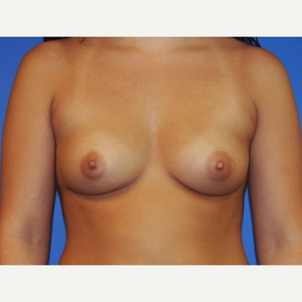 21-year-old woman treated with Saline Breast Augmentation before 3325878