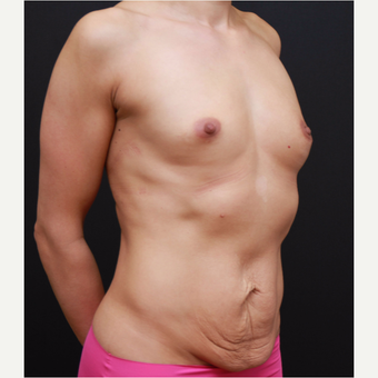 25-34 year old woman treated with Breast Augmentation before 3167752
