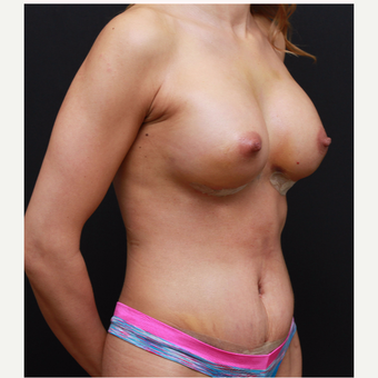 25-34 year old woman treated with Breast Augmentation after 3167752
