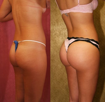 Buttock augmentation or Brazilian Butt Lift- BBL after 948184