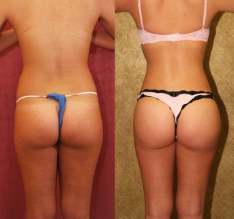 Buttock augmentation or Brazilian Butt Lift- BBL before 948184