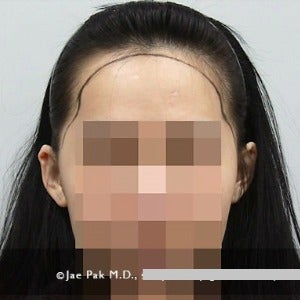 18-24 year old woman treated with Forehead Reduction before 2020520