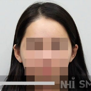 18-24 year old woman treated with Forehead Reduction after 2020520