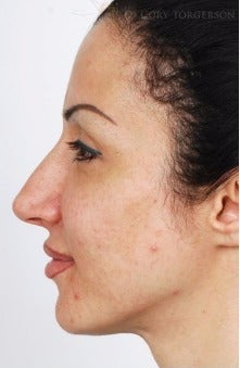 25-34 year old woman treated with Rhinoplasty before 3264337