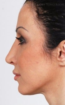 25-34 year old woman treated with Rhinoplasty after 3264337