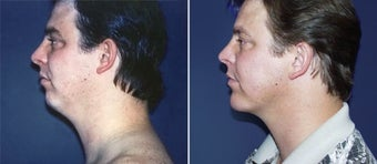 Chin Augmentation before 997230