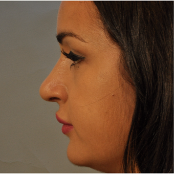 18-24 year old woman treated with Rhinoplasty after 3332883