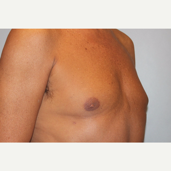 55-64 year old man treated with Male Breast Reduction after 3569494