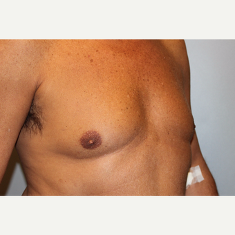 55-64 year old man treated with Male Breast Reduction before 3569494