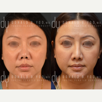 Revision Asian Rhinoplasty before 3477554