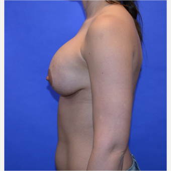 35-44 year old woman treated with Breast Lift with Implants after 3580029