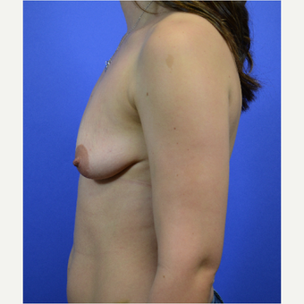 35-44 year old woman treated with Breast Lift with Implants before 3580029