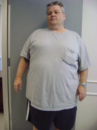 Gastric Bypass before 216849