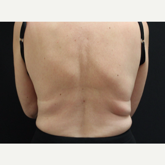 45-54 year old woman treated with Liposuction before 3099059