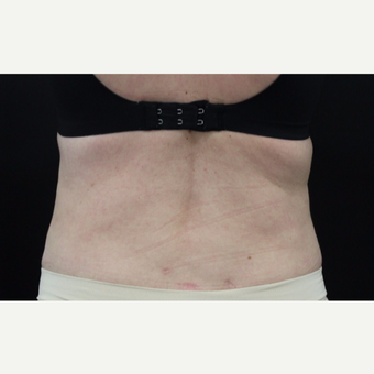 45-54 year old woman treated with Liposuction after 3099059