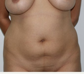 35-44 year old woman treated with Liposuction before 3691029