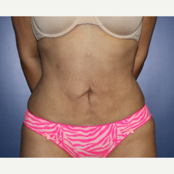 35-44 year old woman treated with Liposuction after 3691029