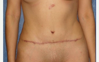 25-34 year old woman treated with Tummy Tuck Revision before 2289335
