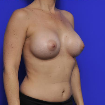 37 year old woman treated with Breast Augmentation after 3425748