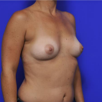 37 year old woman treated with Breast Augmentation before 3425748