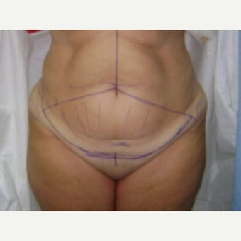 Age 45-55 Patient with Tummy Tuck before 2585437