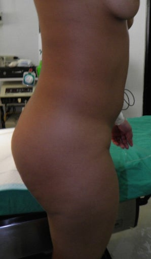 18-24 year old woman treated with Brazilian Butt Lift before 3168826