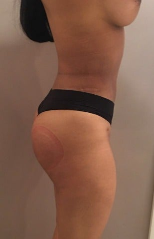 18-24 year old woman treated with Brazilian Butt Lift after 3168826