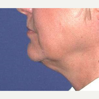 55-64 year old woman treated with Chin Liposuction before 3641484