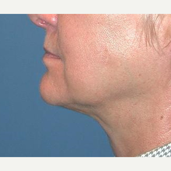 55-64 year old woman treated with Chin Liposuction after 3641484