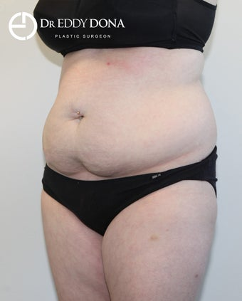 25-34 year old woman treated with Tummy Tuck 2862502