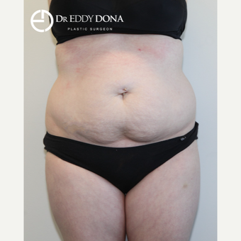 25-34 year old woman treated with Tummy Tuck before 2862502