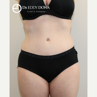 25-34 year old woman treated with Tummy Tuck after 2862502
