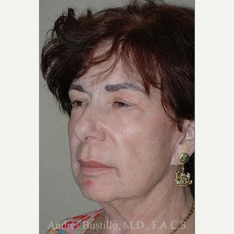 65 year old woman treated with Facelift before 3486268