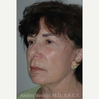 65 year old woman treated with Facelift after 3486268